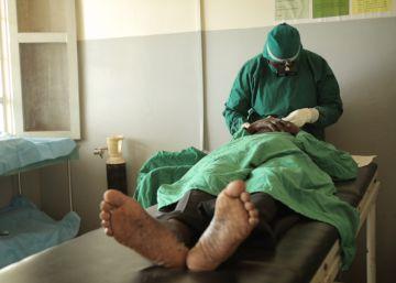 La batalla final contra el tracoma