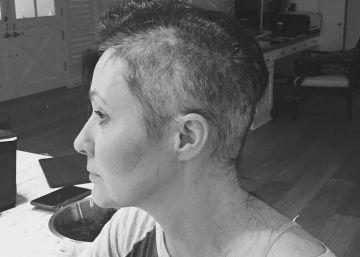 Shannen Doherty muestra cómo pierde el pelo por el cáncer