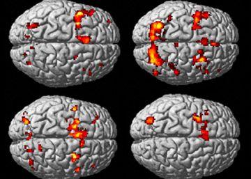 Una revisión invalida miles de estudios del cerebro