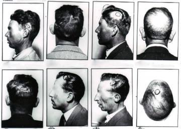 El hombre que aprendió de los cerebros reventados en la Guerra Civil