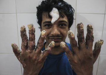 El 'hombre árbol' recupera sus manos