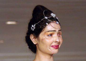 Reshma, víctima de un ataque de ácido, redefine la belleza en Nueva York
