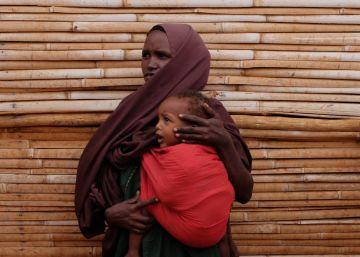 El etíope que cose vidas