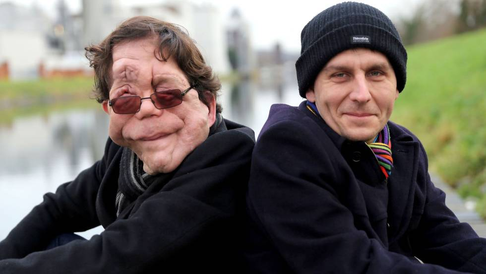 British actor Adam Pearson (left) with his twin brother Neil.