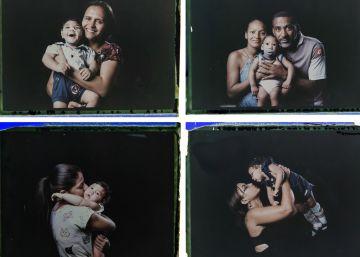 Madres de bebés con microcefalia