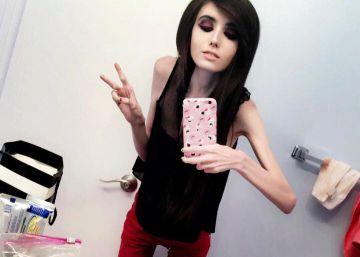 Petición para cerrar el canal de una 'youtuber' por inducir a la anorexia