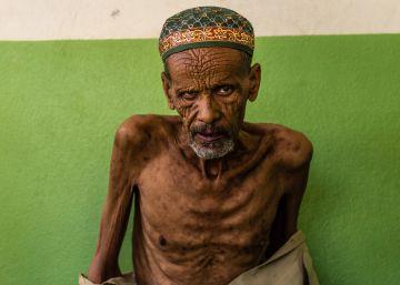 Etiopía: contrarreloj contra el hambre