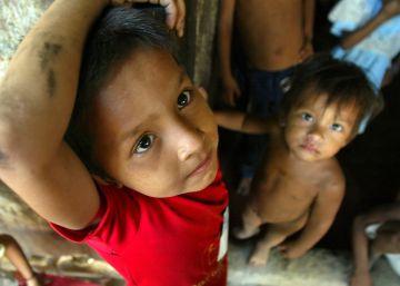¿Se puede pensar la desnutrición desde los derechos humanos?