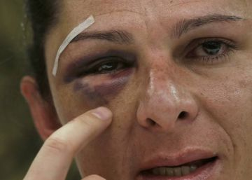 Mexican senator vows to fight gender violence after vicious attack