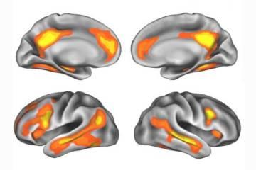Las áreas del cerebro que más cambian durante el embarazo.