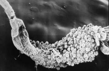 Porción del intestino infestada de 'Plasmodium'.