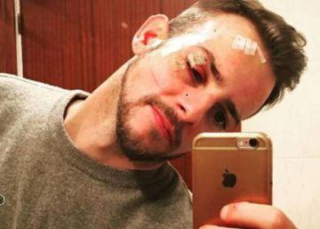 Alex Casademunt, agredido en una discoteca de Vigo