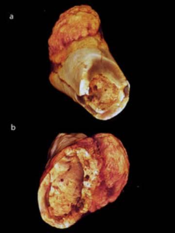 Una vista diferente del tumor del hueso metatarsiano.