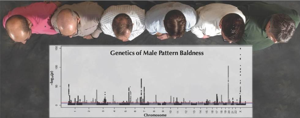 Patrones genéticos de la calvicie en los hombres, según el estudio.
