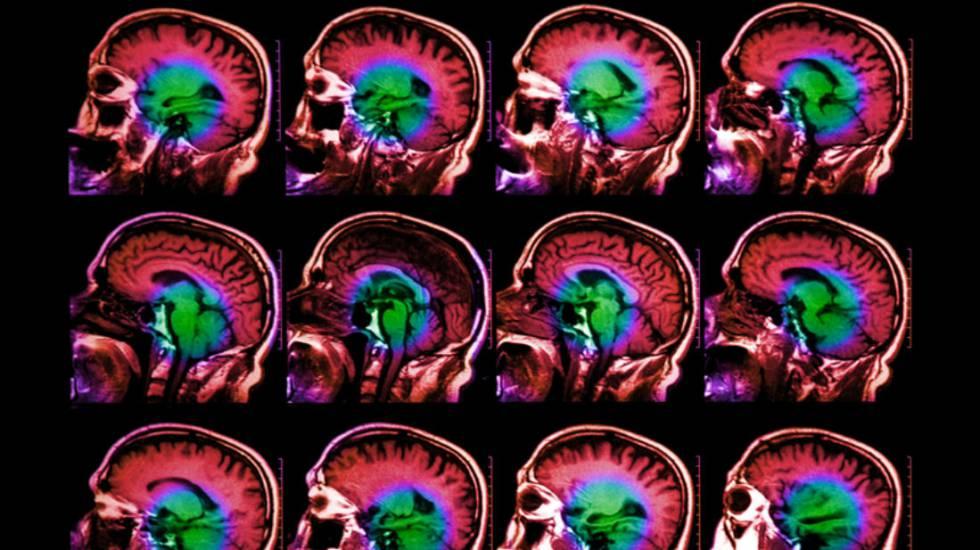 Investigadores de la Universidad de Columbia han descubierto un gen que tiene relación directa con el envejecimiento del cerebro.