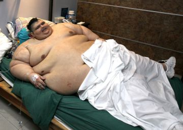 In Mexico, world's largest man operated on to reduce his stomach