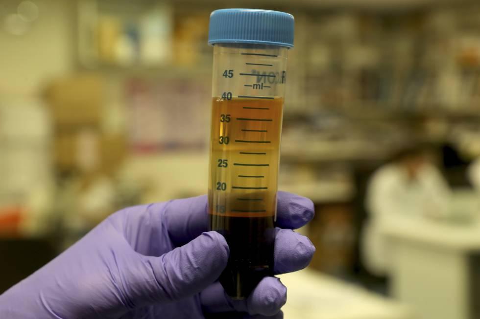 Un investigador sostiene una muestra de sangre en el laboratorio del biobanco del Gregorio Marañón.