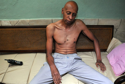 El disidente cubano Guillermo Fariñas en su sexto día de huelga de hambre, el pasado 2 de marzo.
