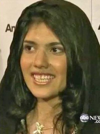 Imagen de televisión de Aisha, la joven afgana, tras someterse a una operación de cirugía para recuperar la nariz.