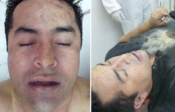 Fotografías del cadáver de Lazcano difundidas por la Marina Armada de México.