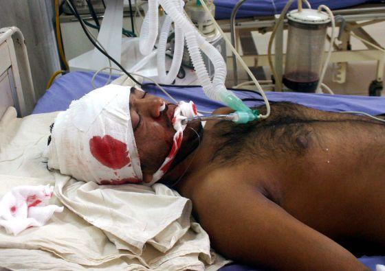 Un empleado de la campaña de vacunación se recupera de las heridas de uno de los ataques.