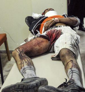 Uno de los jornaleros heridos recibe tratamiento médico en un centro médico de Varda.