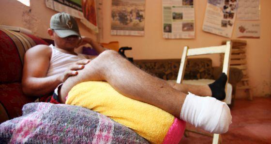 Uno de los migrantes que ha perdido un pie en el ataque.