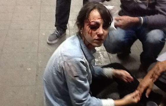 La periodista Giuliana Vallone, herida en la protesta.
