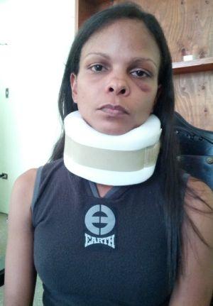 Marvinia Jímenez fue víctima de una paliza por la Guardia del Pueblo el 24 de febrero de 2014 cuando sacaba fotos de una manifestación en Valencia, Estado de Carabobo (Venezuela).