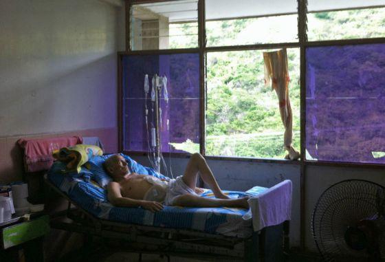 Un paciente en el hospital Central de Maracay, Venezuela.