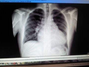 Radiografía tomada a Sergi Forés a mediados de enero, cedida por su esposa.