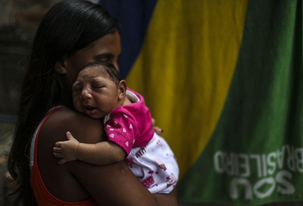 Una madre brasileña con su hija, que nació con microcefalia.