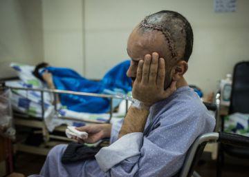La guerra siria también se cura las heridas en el hospital del enemigo