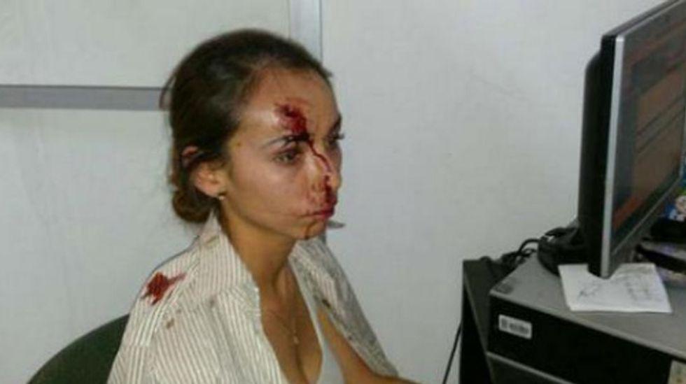 La periodista Karla Silva tras la agresión de 2014.