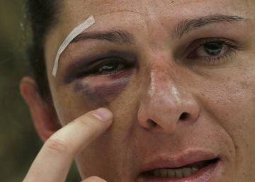 Detenido el agresor de la senadora Ana Gabriela Guevara