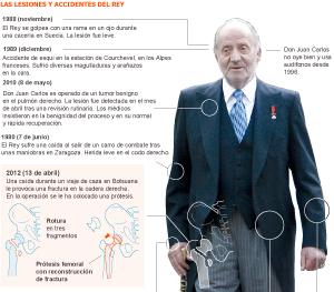 Infografía: las lesiones y operaciones del Rey