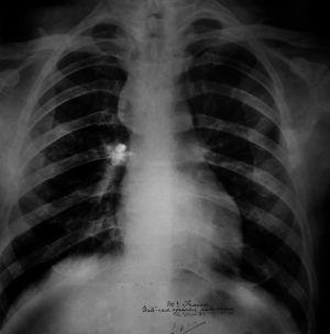 Radiografía del tórax donde se ve la bala.