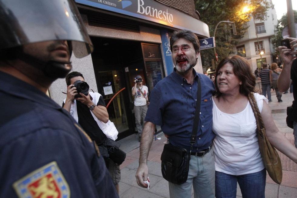 Un ciudadano con la cara ensangrentada en el entorno de la sede del PSOE en la calle de Ferraz, donde hubo otra concentración de protesta por el tijeretazo del Gobierno.