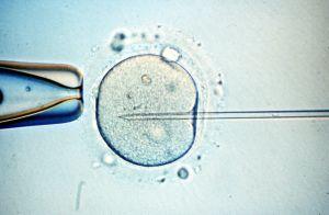 Microinyección de esperma en un óvulo.