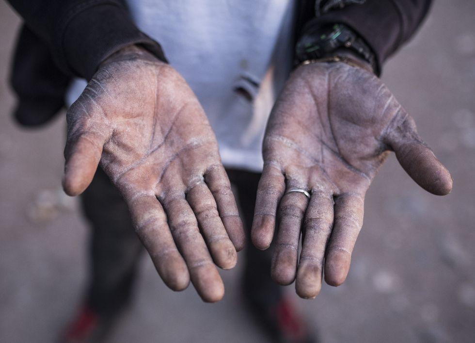 Un trabajador subsahariano de los invernaderos de Almería muestra sus manos en Níjar.
