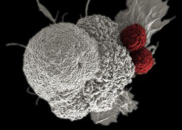 22 hospitales miden su calidad en oncología