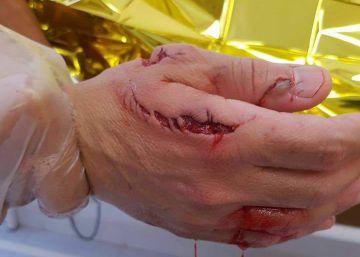 Un tiburón ataca a un bañista en la playa de Elche