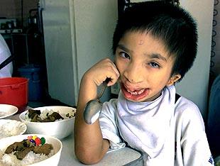 Un niño, víctima del arma tóxica, desayuna en el hospital Ho Chi Minh.