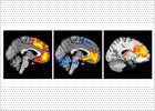Descubren la zona cerebral que podría localizar la esquizofrenia