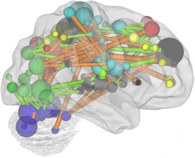 Regiones clave para determinar el grado de madurez basándose en la intensidad de conexiones entre neuronas