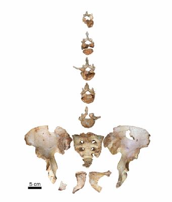 La pelvis y cinco vértebras lumbares de un individuo preneandertal de 45 años o más con malformaciones