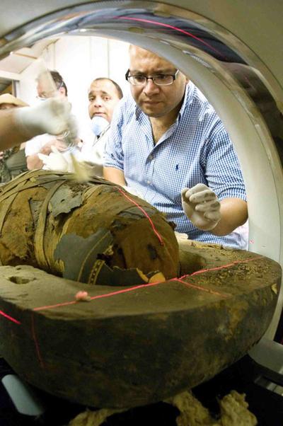Momia de la princesa del antiguo Egipto Ahmose-Meryet-Amon en la que se ha identificado, mediante tomografía computerizada, que padecía aterosclerosis.