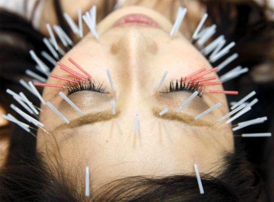 La acupuntura es eficaz para tratar náuseas y cefaleas.