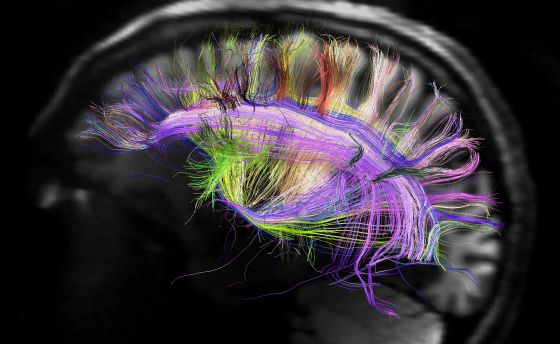 Imagen del cerebro que muestra las curvas de fibras neuronales.