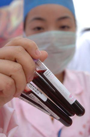Muestras de células madre donadas por voluntarios en China.